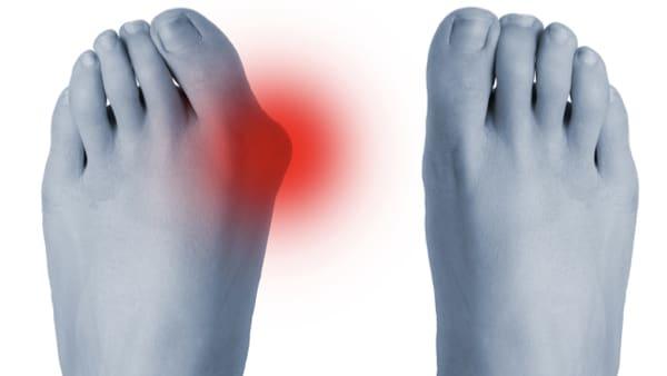 Chirurgie percutanée du pied
