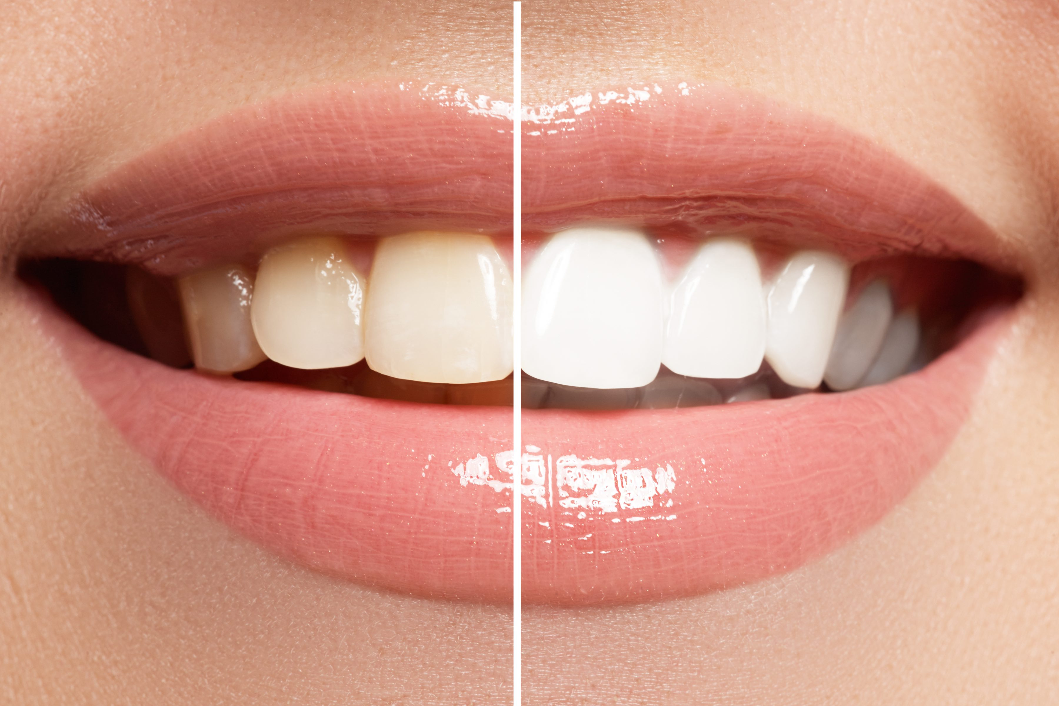 blanchiment-dentaire_608bd88b5d6ea.jpg