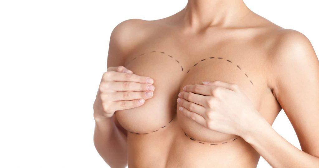 chirurgie-du-sein-augmentation-mammaire-lipofilling-1024x541_5f575e3ce5a7b.jpg