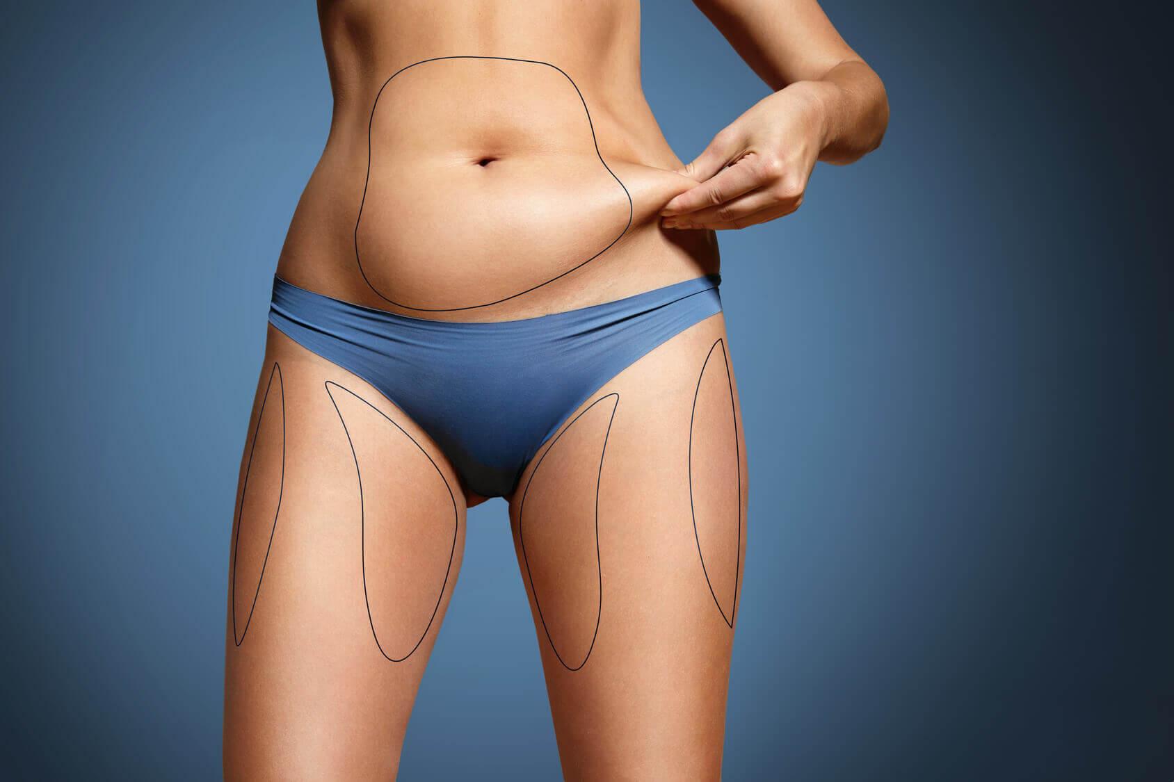 chirurgie-esthetique-liposuccion_5f574d659e581.jpg
