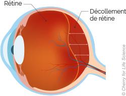decollement-retine_5f5b9249eda28.jpg