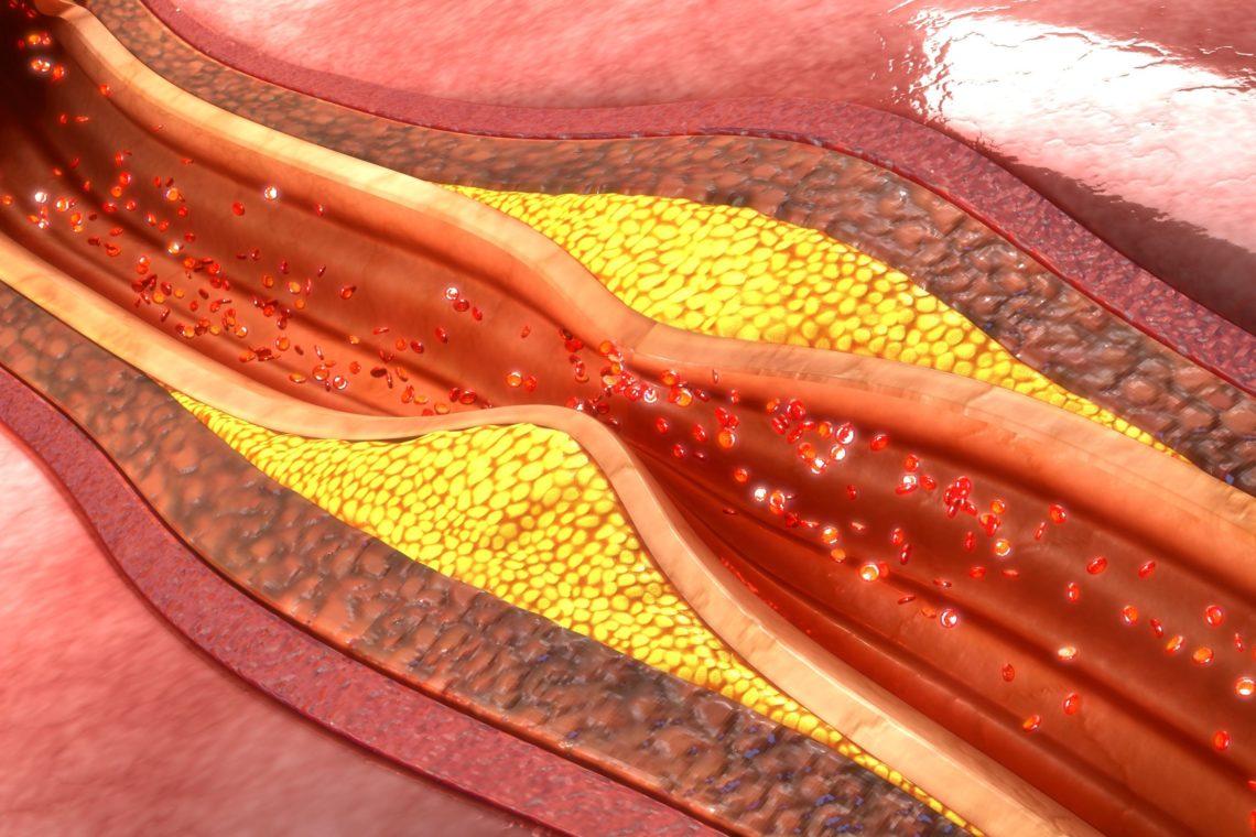 l-rsquo-atherectomie-1140x760_5f5755709f171.jpg