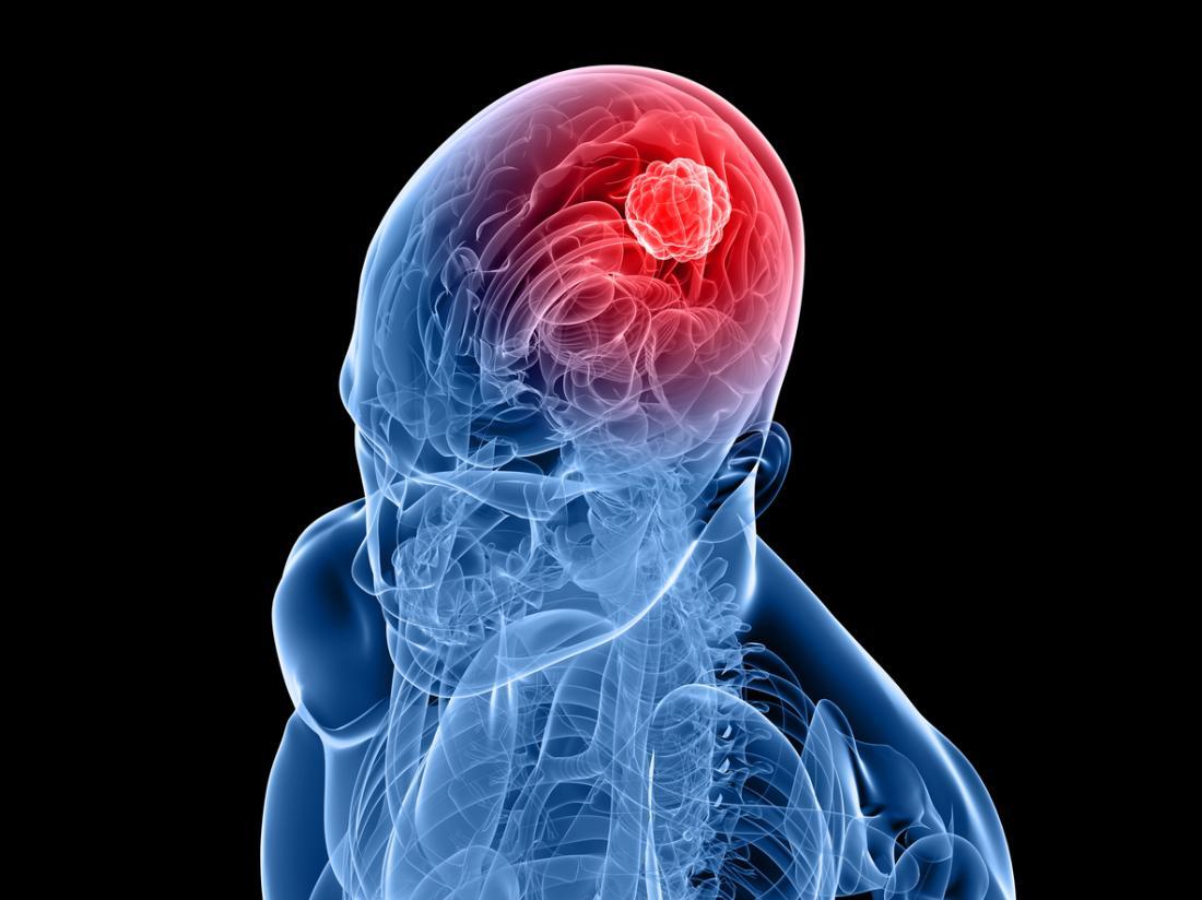 les-tumeurs-intracraniennes_5f57390557687.jpg