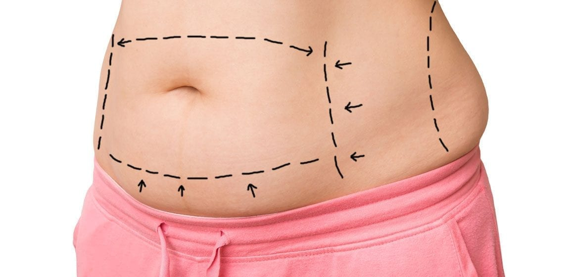procedures-tummy-tuck-1160x560_5f574d7127b1d.jpg