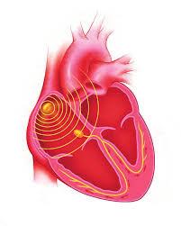 therapie-de-resynchronisation-cardiaque_5f57578429736.jpg